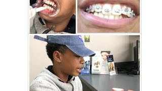 VLOG EP 1|| I GOT BRACES!! || THEY HURT SO MUCH! || MEET CRINGE MOM!