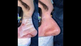 Rhinoplasty (Nose Job) Surgery Dr. Angel Enchev MD PhD