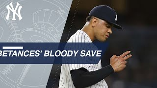 Betances notches 100th K in 5th straight season