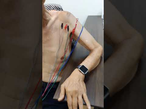 76 YO PATIENT SUFFERED MUSCLE ATHROPHY AND NOW UNDERGO ELECTRO ACUPUNCTURE