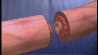 Tubal Ligation (Tubes Tied) Video