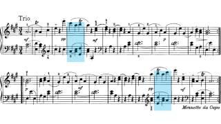J. Haydn. Sonata para piano nº 26 en La mayor. Menuetto al Rovescio,