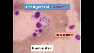 Leishmania donovani (LD body) like organism seen in Giemsa stained smear