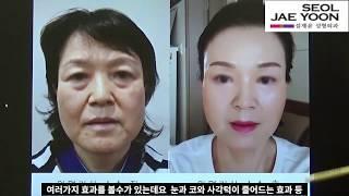 57세 주부의 안면거상술 이후의  변화