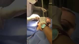 Dinamik askı ile ameliyatsız yüz germe işlemi