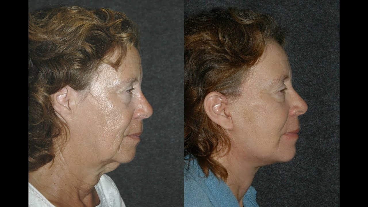 Smas Lower Facelift Before And After 2 Weeks Post Surgery