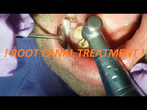 ROOT CANAL TREATMENT !!!