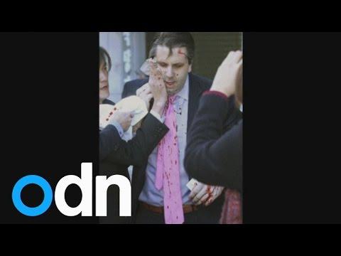 US ambassador slashed in face in South Korea attack