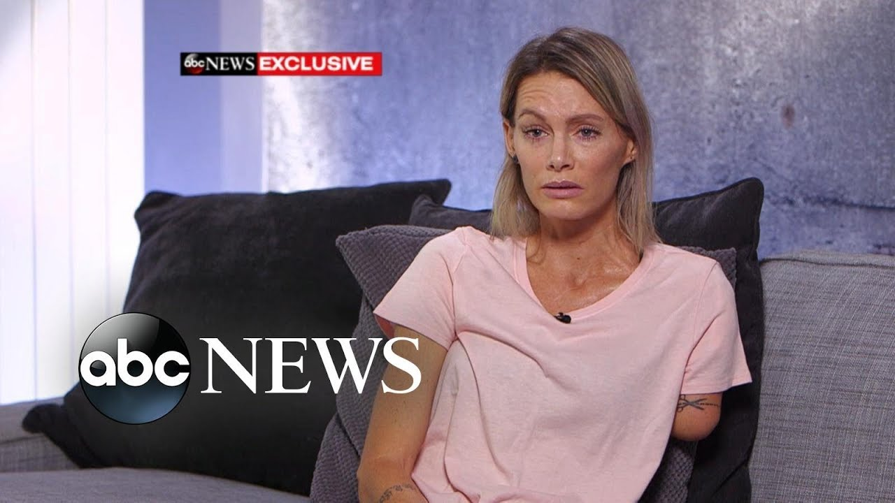 'Resident Evil' stuntwoman speaks out about injury, lawsuit l ABC News