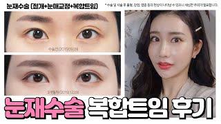 눈재수술 쌍수 후기, 절개+눈매교정+복합트임(세미아웃라…