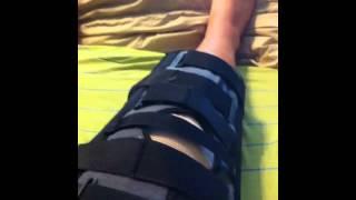 quadriceps patellar tendon bilateral knee surgery video 2