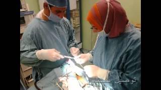 أ-د/إبراهيم عبالعال * مخ وأعصاب عملية صمام فى المخ