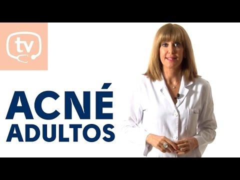 Cómo tratar el acné del adulto