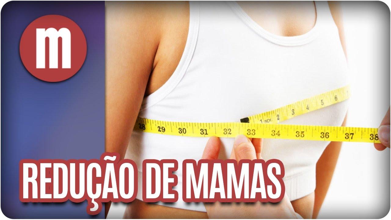 c8550c615 Redução de mamas - Mulheres 20 03 17) - YouTube