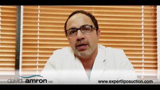 Chin Liposuction-Dr. David Amron Thumbnail
