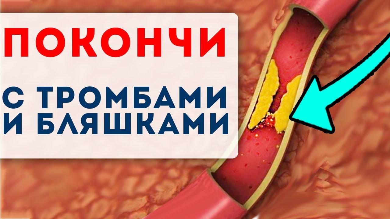 10 ЛЮТЫХ КИЛЛЕРОВ тромбов и бляшек! Главные продукты для очистки сосудов!