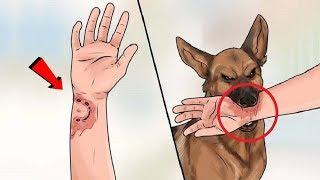 कुत्ते के हमले से बचने के 5 सबसे आसान तरीके How to Survive a Dog Attack
