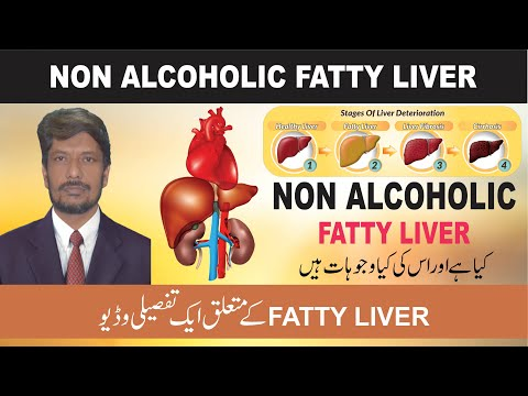 Non Alcoholic Fatty