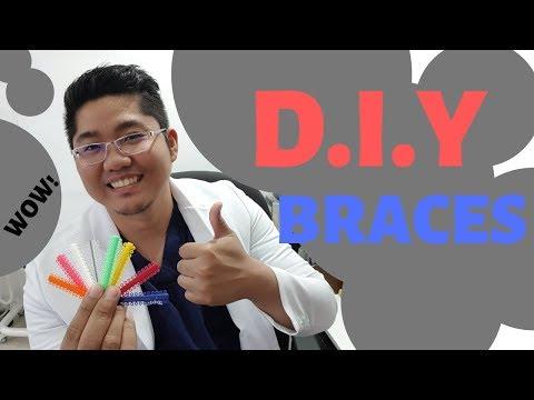 DIY BRACES : DIY DENTISTRY