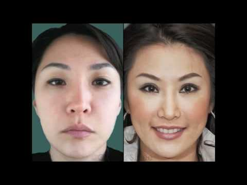 Asian Eyelid Surgery By Dr Charles S Lee Youtube