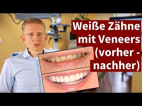 Weiße Zähne mit Veneers (vorher - nachher) 2018