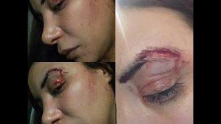 لبنى أبيدار تتعرض للإعتداء في مدينة الدار البيضاء
