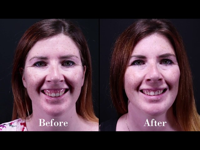 How to Improve the ATTRACTIVENESS of your MOUTH and LIPs