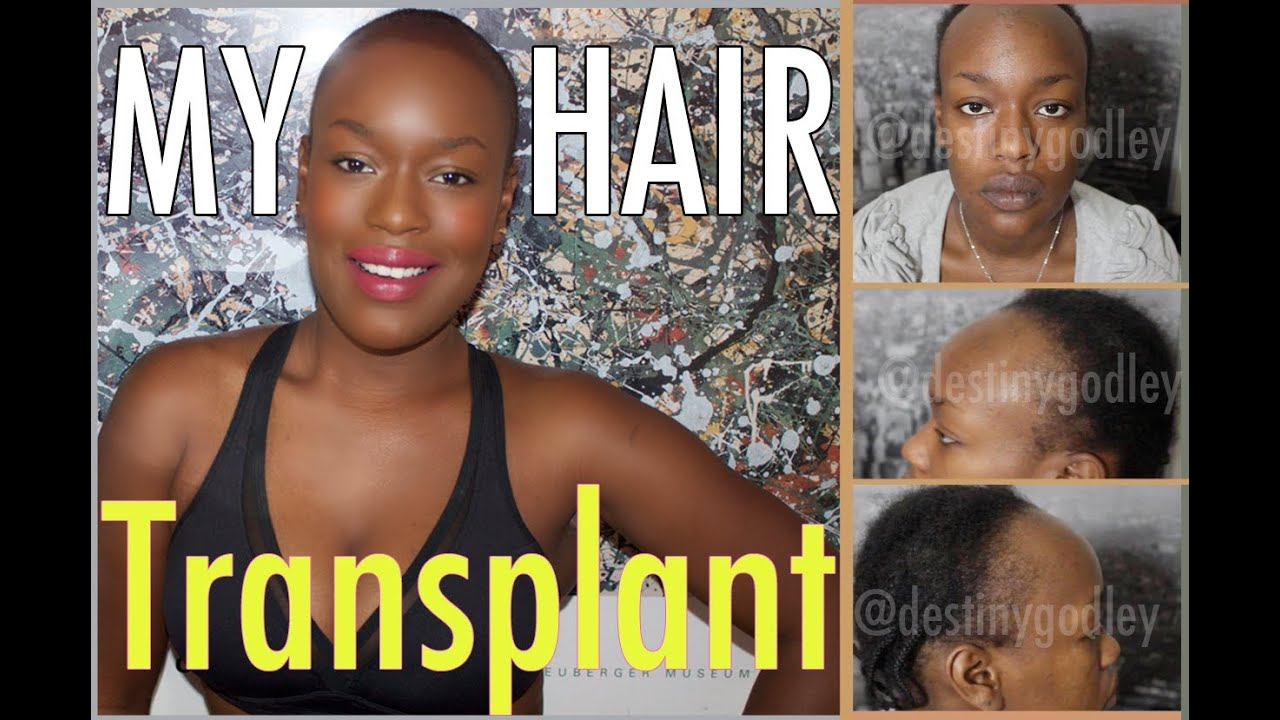 Female Hair Transplant Before & After Photos - Female Hair Transplant Before & After Photos