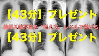 胸部X線写真を「考え方」レベルで繋げるダイジェスト 谷口総志 thumbnail
