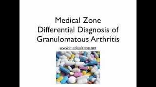 Medical Zone  -  Differential Diagnosis of Granulomatous Arthritis