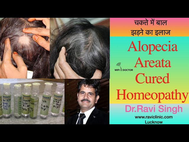 Alopecia Areata Cured in a lady