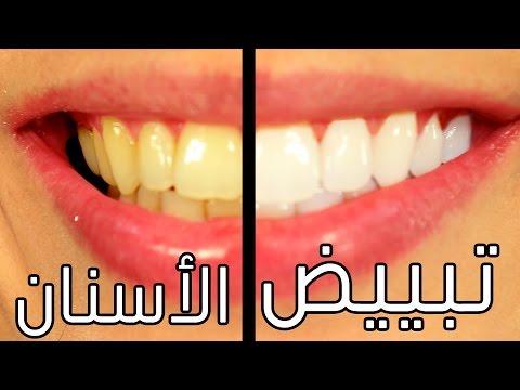 تبييض الاسنان - 9 طرق لاسنان بيضاء في المنزل