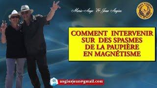 Les points à connaître pour traiter les spasmes des paupières# Magnétiseur# Formation Jean angius