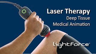 Laser Therapy - Deep Tissue Medical Animation