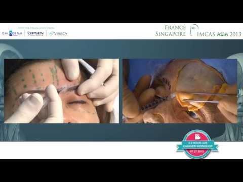 Injectables Cadaver Workshop Practical Anatomy On Cadaver Imcas