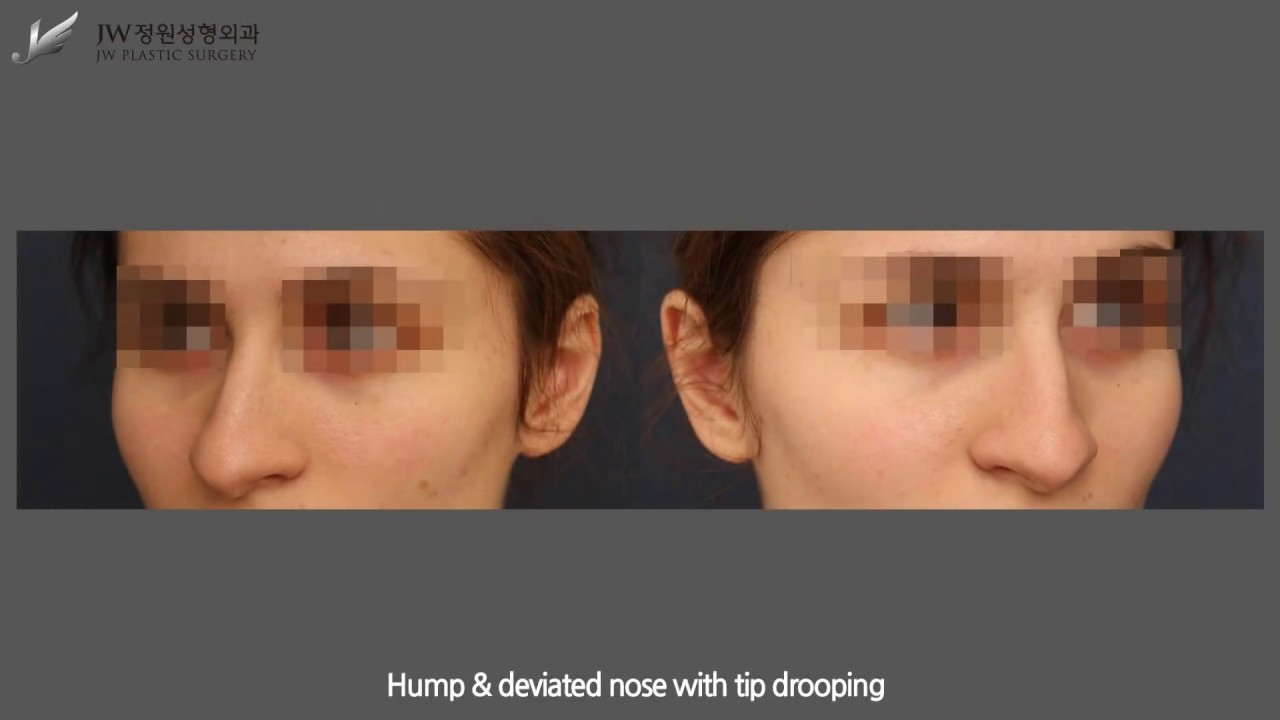 [JW Plastic Surgery Korea] Caucasian Rhinoplasty by Dr. Suh (korean rhinoplasty)