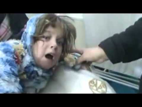 شام حمص باباعمرو طفلة مصابة بالورك