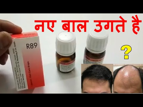 R89 Result And Review || Best Hair Regrow & Hair Fall Controller
