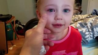 The best way to do eyedrops on a child!!!