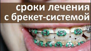 Брекет система. ✧ В чем отличия разных брекет систем? Тандем стоматология