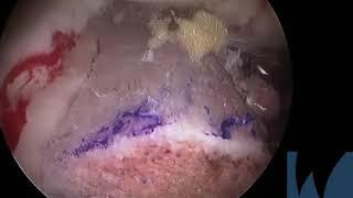 Arthroscopic Anterior and Posterior Glenoid Bone Augmentation...