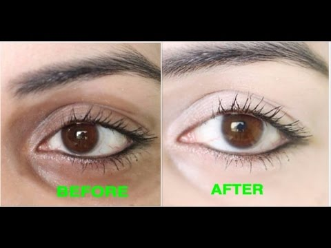How to Remove Dark Circles Naturally in 3 Days (100% Results)