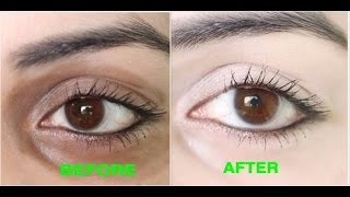 How Remove Dark Circles Naturally Days Results