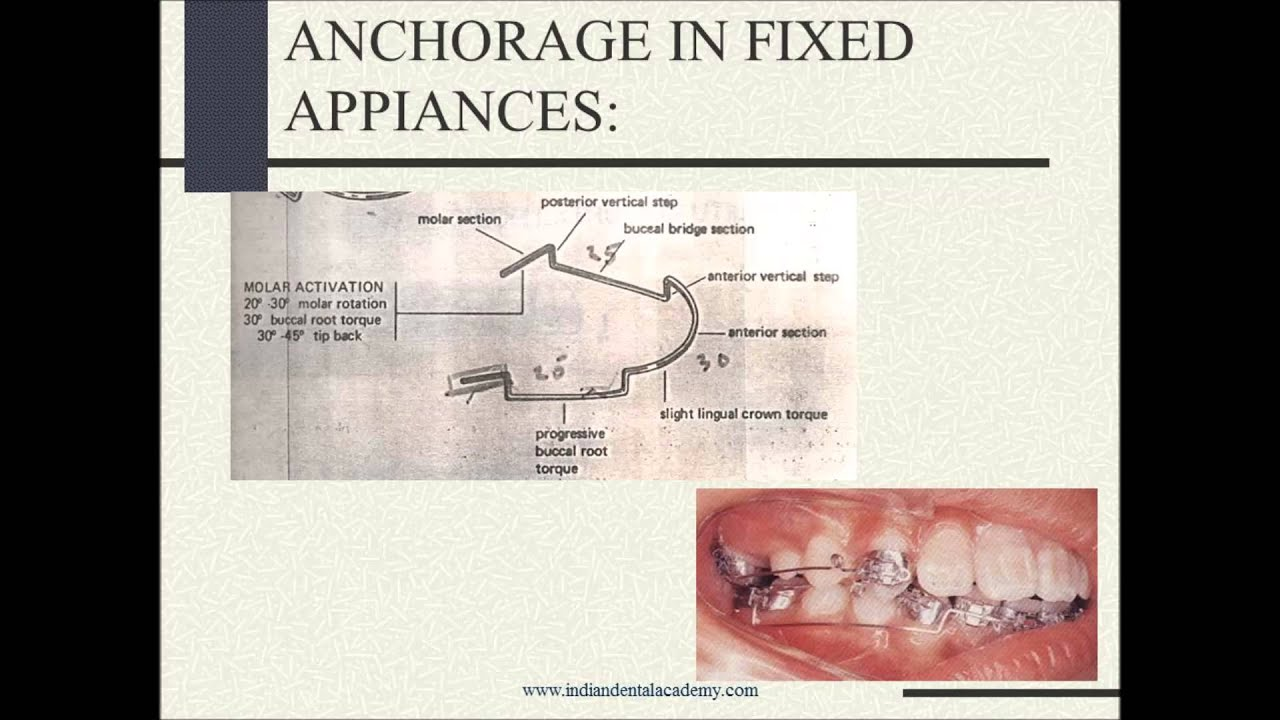 orthodontic anchorage unit research study A comparitive clinical study between self tapping and drill free screws as a source of rigid orthodontic anchorage  used as anchorage unit for  study sample.