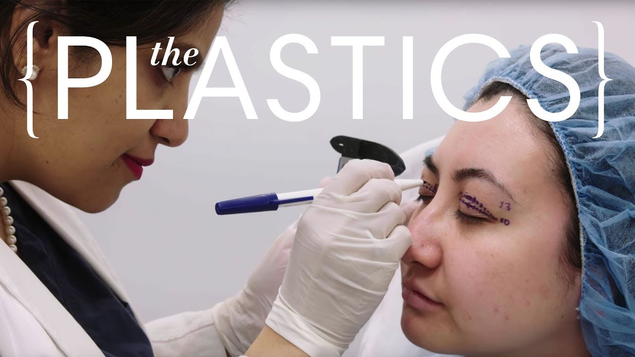 This $16,000 Eyelid Surgery Is Done While You're Awake | The Plastics |  Harper's Bazaar