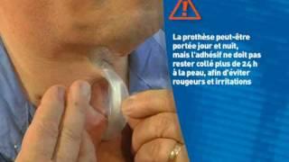 Laryngectomie : Cyranose, Nez Artificiel ou ECH (Echangeur de Chaleur et d'Humidit)