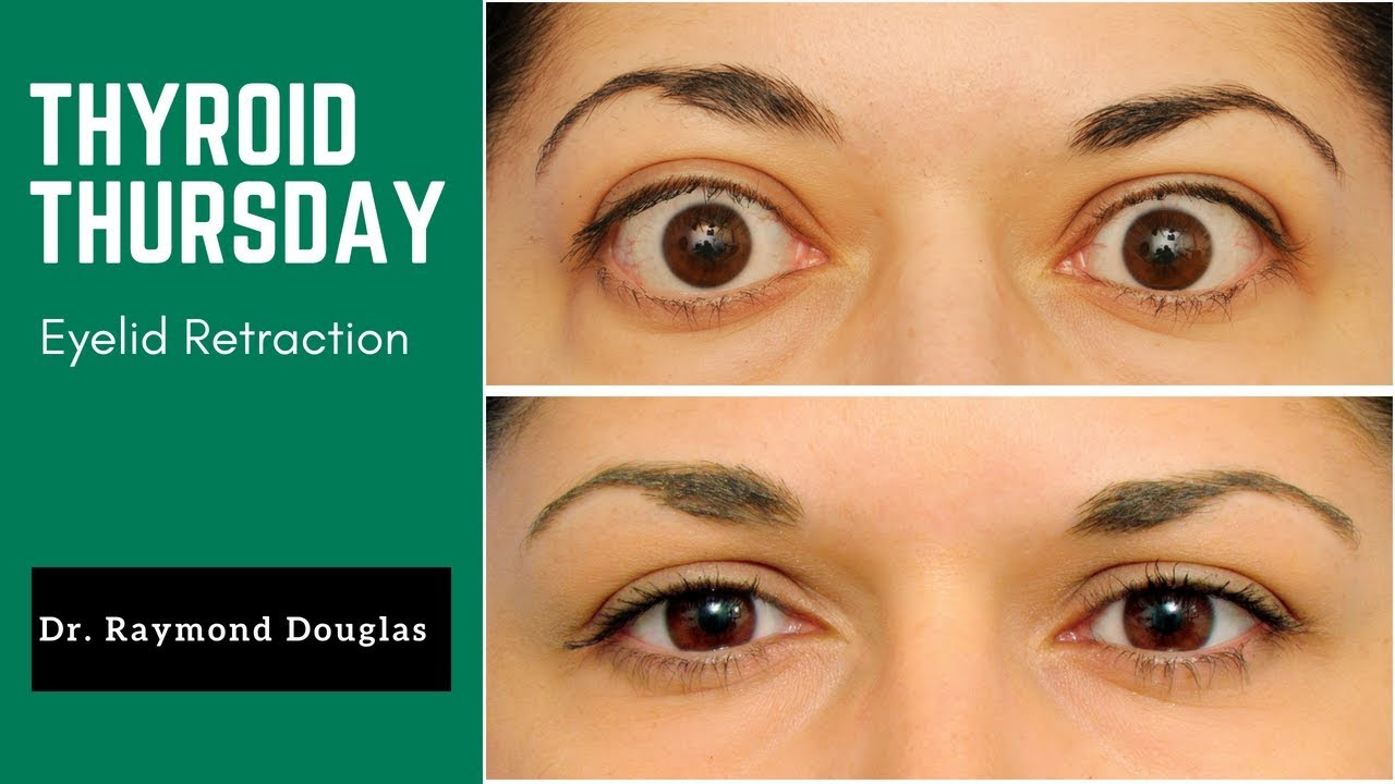 Thyroid Thursday Eyelid Retraction In Graves Disease Youtube