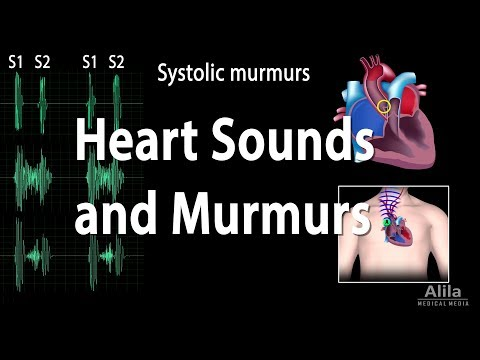 Heart Sounds and Heart Murmurs, Animation.