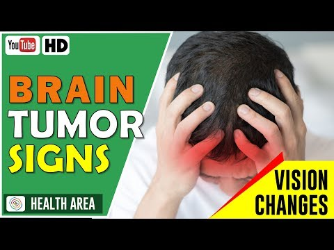 7 Early Signs and Symptoms of a Brain Tumor Don't Ignore These