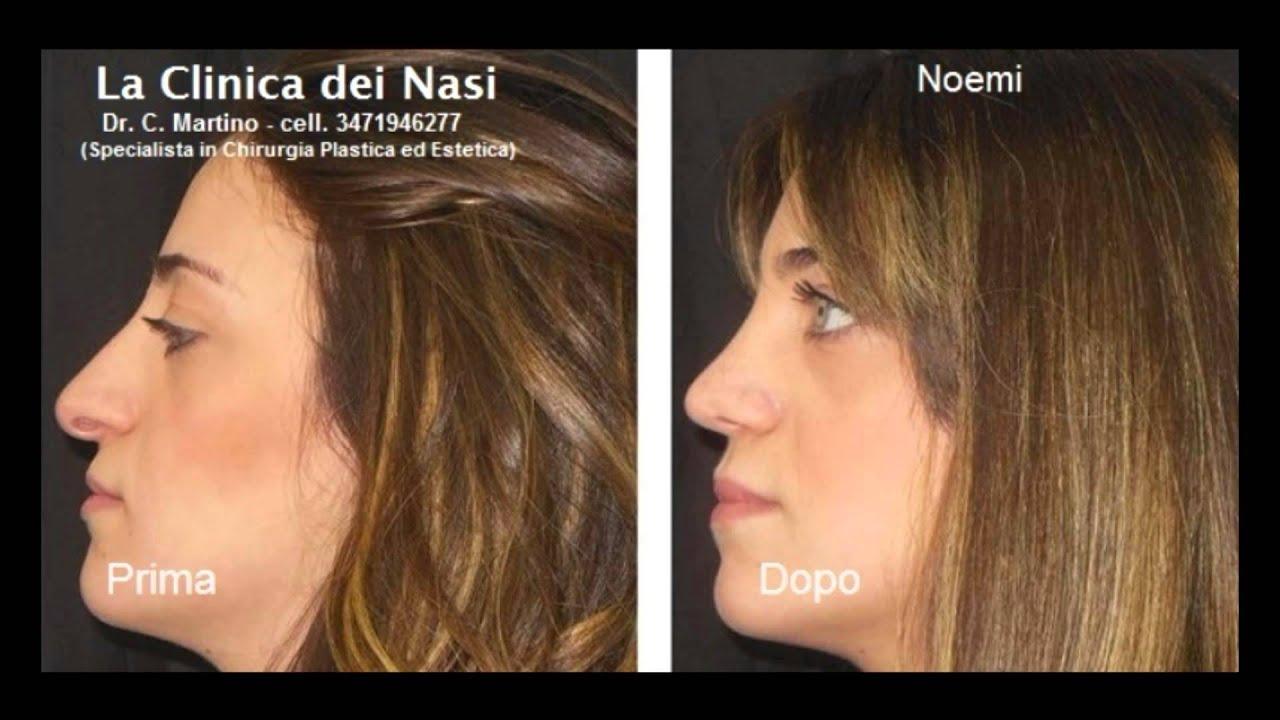 Rinoplastica foto prima dopo - Chirurgia estetica naso foto